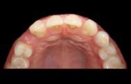 Protezuoti implantai - Prieš